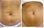 Sebelum - sesudah treatment slimming