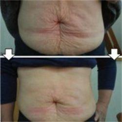 Slimming bagian perut