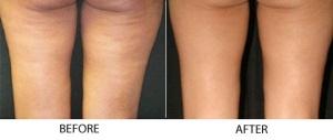 Sebelum dan sesudah treatment bagian paha