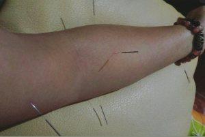 Terapi akupunktur untuk cikungunya